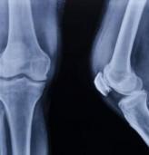 Световен ден за борба с остеопорозата