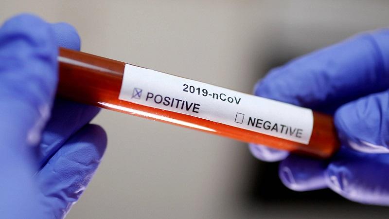 Нови 330 заразени с COVID-19 у нас