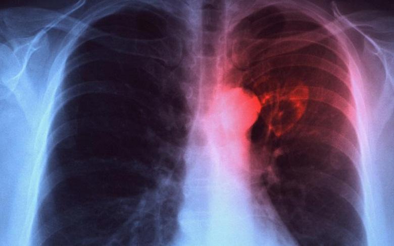 """От днес стартира кампания """"Дни на отворените врати"""" по туберкулоза"""